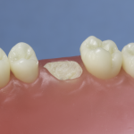 Differentiated Teeth 139